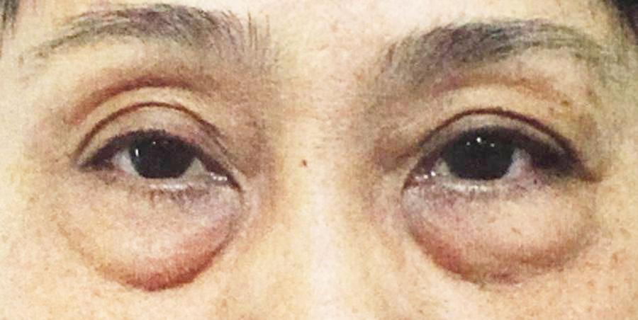 Những người mắt có nhiều khuyết điểm thì không nên lựa chọn phương pháp nhấn mí mắt